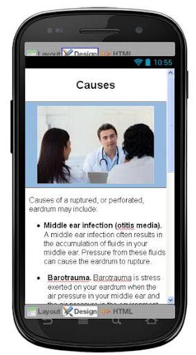 玩醫療App Ruptured Eardrum Information免費 APP試玩