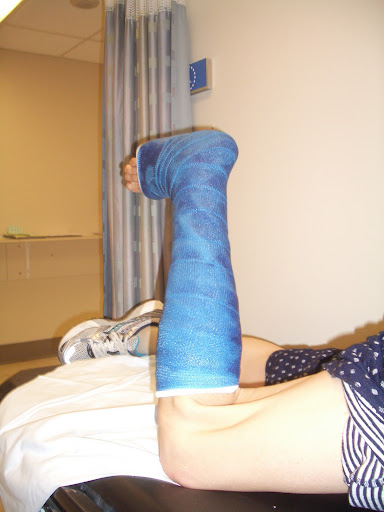 Documenting My Posterior Tibial Tendon Surgery and Recovery