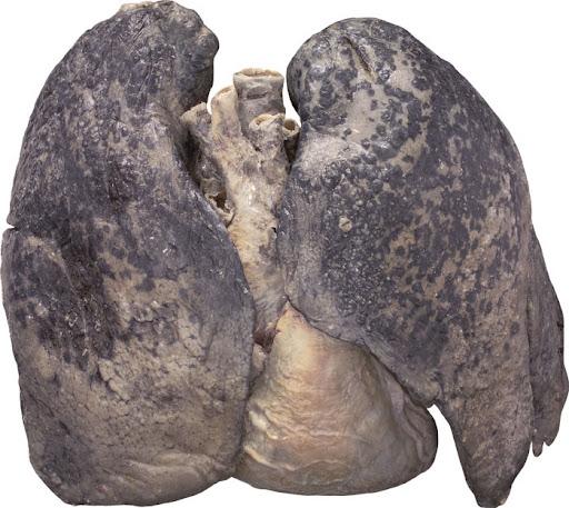 Medical School • Smoker's lungs
