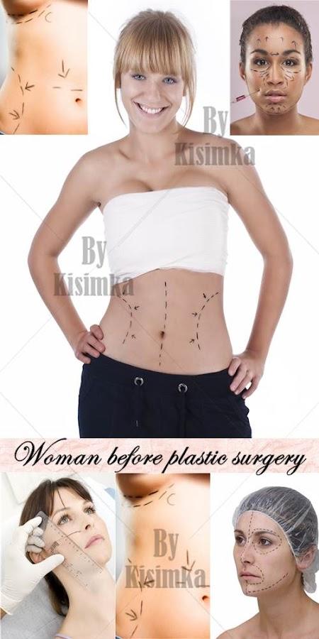 Stock Photo: Woman before plastic surgery