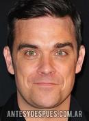 Robbie Williams, 2010