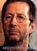 Eric Clapton,