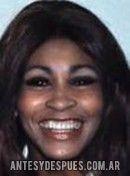 Tina Turner,
