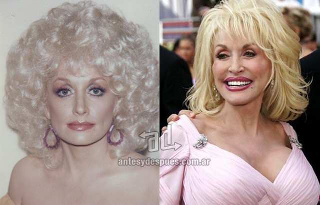 dolly parton antes y despues de la cirugia plastica