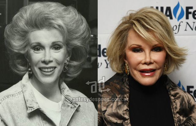 joan rivers antes y despues de la cirugia plastica