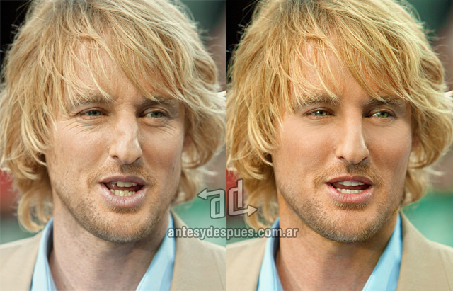 Owen Wilson sin Photoshop
