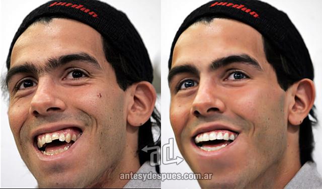 Carlos Tevez sin Photoshop