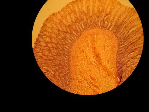 sinus disease icd 10