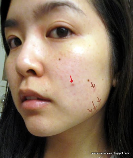How To Get Rid Of Red Acne Scars At Home Best All Natural