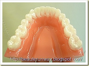 invisalign orchard scotts dental beaute runway 04