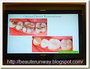 onlays  orchard scotts dental beaute runway