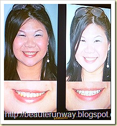 holloywood smile orchard scotts dental beaute runway before n after