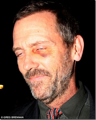 house.black.eye