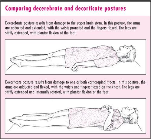 Aayusha Decerebrate Posture Rigidity Abnormal Extensor Jpg 499x458