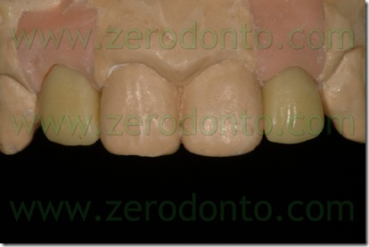 Agenesis of the lateral incisors treated with Straumann Bone
