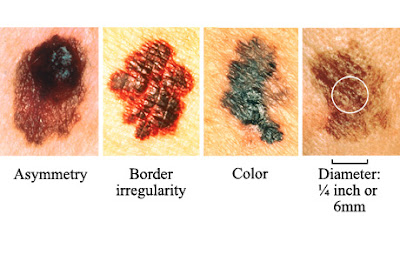 Sun Safety Alliance Learn The A B C D E S Of Skin Cancer Detection