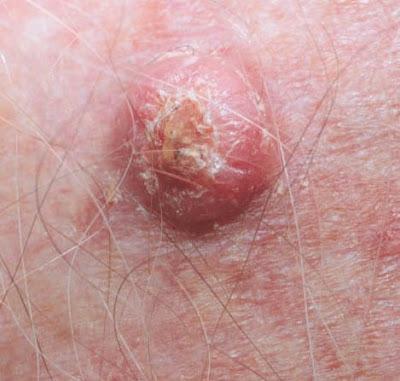 Sun Safety Alliance Three Cells One Disease Skin Cancer