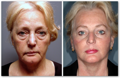 The 3D Facelift with Stem Cells–Local Anesthesia Using ...