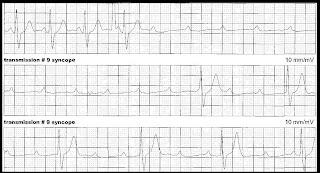 Частые приступы головокружения, слабости и изменения на  ЭКГ