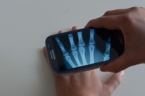 Xray Prank - screenshot thumbnail