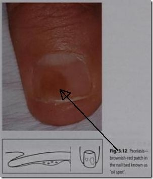 oil drop salmon patch nail