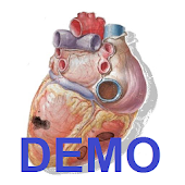 Sonidos Cardiacos Demostración