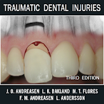Traumatic Dental Injuries v2.3.1