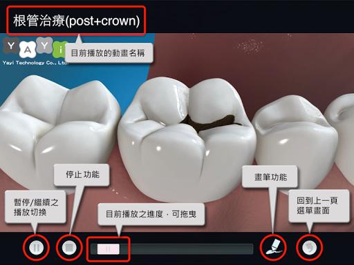 玩醫療App|易牙醫「解說大師」(繁體中文語音版)免費|APP試玩