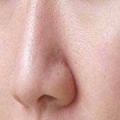 Clear Pores