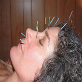 Locating An Acupuncturist