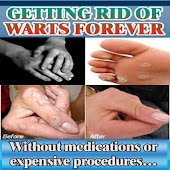 Getting Rid Of Warts Forever