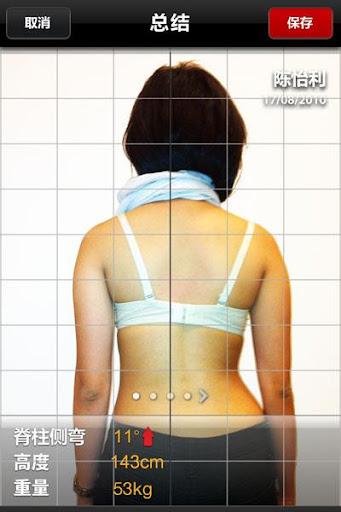 【免費醫療App】脊柱側彎跟踪 (ScolioTrack)-APP點子
