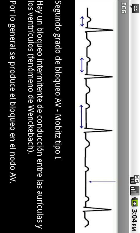 Electrocardiograma ECG Tipos- screenshot