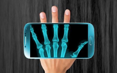 X光掃描器