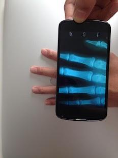X-Ray Scanner - screenshot thumbnail