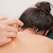 Acupuncture Tips