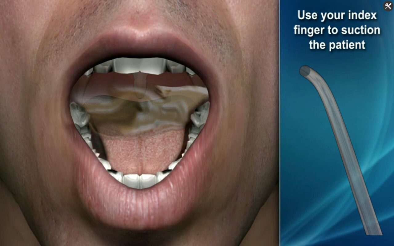 Medrills: Airway Suctioning - screenshot