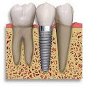 Dental Implant Billing Codes icon