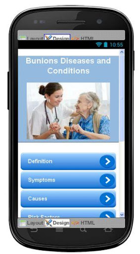 Bunions Disease Symptoms