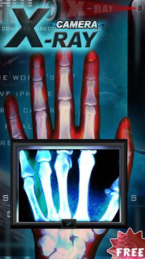 終極X射線相機