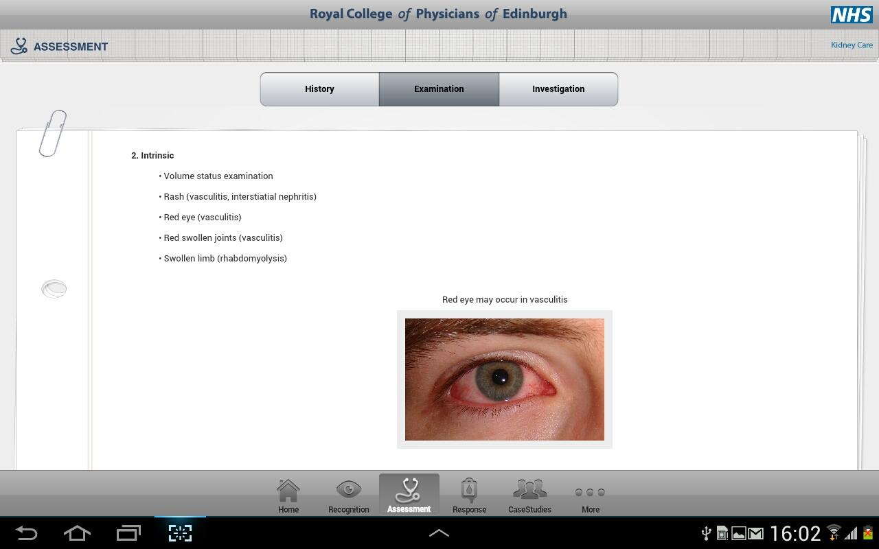 Acute Kidney Injury Tablet App- screenshot