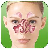 SinusAllergyPro