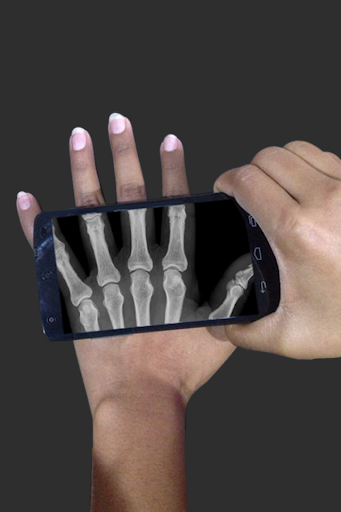 X射线扫描仪恶作剧