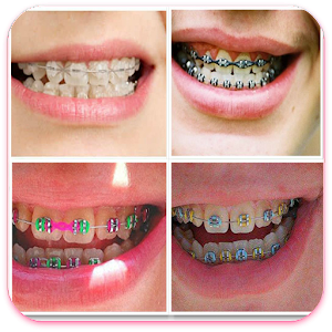 How to Make Fake Braces LOGO-APP點子