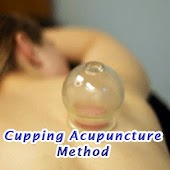 Cupping Acupuncture Manual
