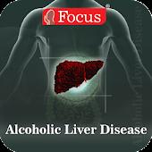 Alcoholic Liver Disease (ALD)