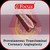 Coronary Angioplasty - PTCA
