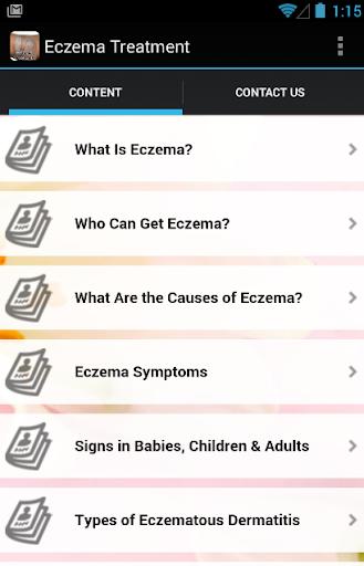 Eczema Symptoms Treatment