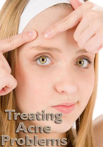 Treating Acne Problems