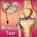 Meniscal Tear logo
